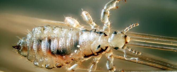 Head lice are nasty but they don't carry diseases. (flickr)